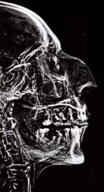An older x-ray of the   head of Ramesses II