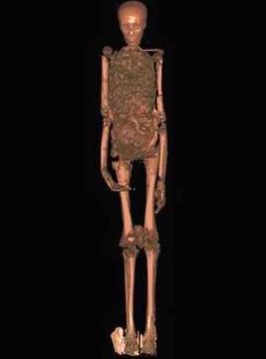 CAT Scan of King Tut's Mummy